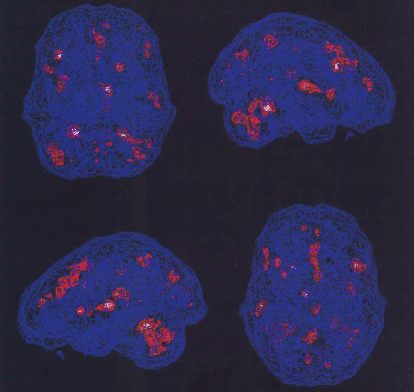 2009 brain scans