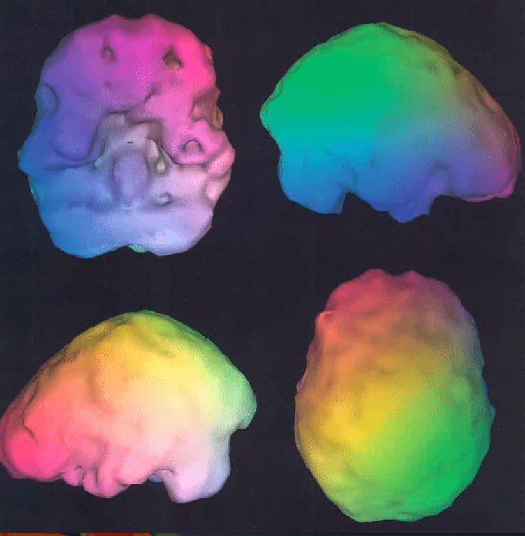 2015 brain scans