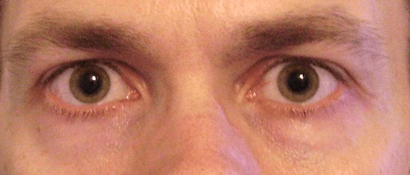 Dilated pupils eye body language
